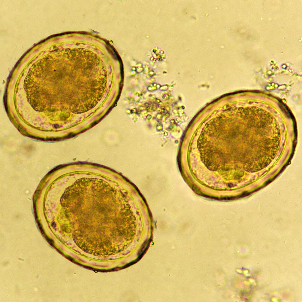 Eggs of Ascaris lumbricoides roundworm in stool