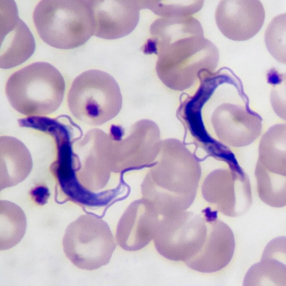 Trypanosoma gambiense blood smear
