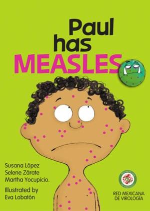 "Book cover ""Paul Has Measles"""